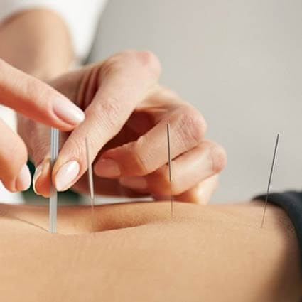 Traitement en acupuncture